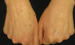Close-up picture of two hands showing age spots removal.