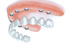 Illustration of an all-on-8 dental procedure.