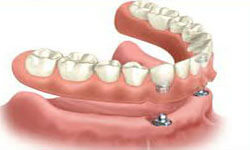 Illustration of an all-on-2 dental procedure.