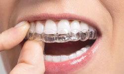 Illustration of metal braces on teeth.