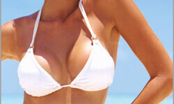 Picture of a woman wearing a white top, showing the results of a breast lift, reduction and breast implants procedure.