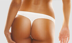 Photo of a tanned woman showing the results of a buttocks augmentation procedure.