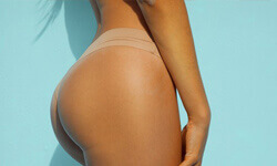 Picture of a woman showing a side view of a buttocks microfat procedure