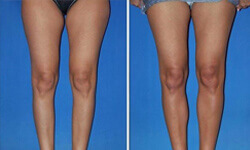 Picture of before and after of a calf implants procedure.