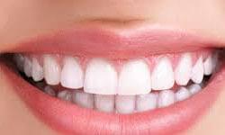 Illustration of dental caps creating a full beautiful smile.