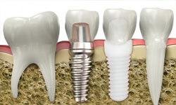 Illustration of a ceramic dental implant next to a zirconium dental implant