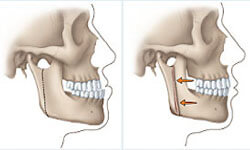 Before and After Illustration of a corrective jaw surgery procedure.