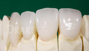 Picture of 5 Emax crowns.