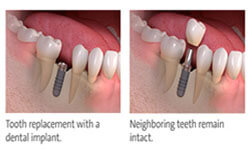 Before and after pictures of the lower jaw showing 6 teeth and the placement of a dental implant crown.