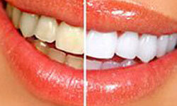 Picture of a smiling woman showing unwhitened teeth on one side of the smile and whitened teeth on the other side.