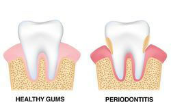 Illustration showing periodontal disease.