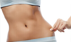 Photo of a woman's midsection showing a liposuction of the hips procedure.