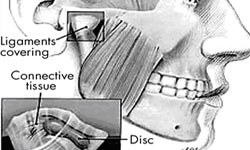 Illustration of the jaw area showing a holistic jaw osteonecrosis condition.