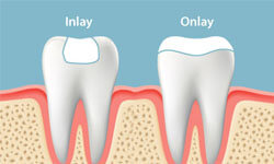 Illustration of two teeth, one showing a dental inlay and the other showing a dental onlay.