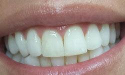 Illustration of beautiful teeth following an Invisalign procedure.