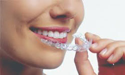 Picture of a dental patient holding invisible braces aligners up to her teeth.