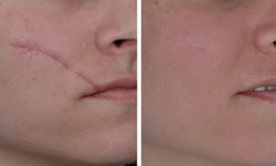 Close-up picture of a face showing a laser scar removal procedure.