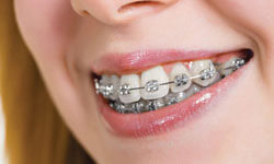 Picture of a dental patient showing metal braces on her teeth.