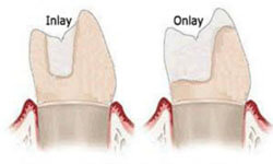 Illustration of three teeth, one showing a crown, but the other two showing a dental inlay and a dental onlay
