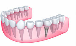 Illustration of the lower teeth showing a dental implant placed after oral surgery.