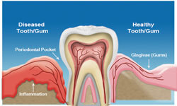 Illustration of a tooth placed in the gum and showing inflammation in the surrounding areas.