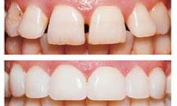 Picture of upper and lower teeth showing before and after having a pure porcelain veneers procedure.