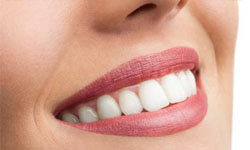 Picture of a smiling woman showing her pure porcelain zirconium emax crowns procedure.