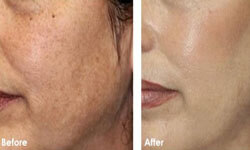 Close-up picture of a female face showing the results of a TCA skin peel procedure.