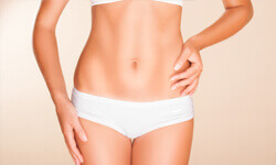 Front picture of a woman's abdomen showing a tumescent liposuction procedure she had.