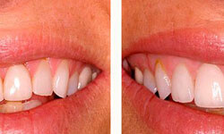 Before and after pictures of a smiling patient showing new veneers on the top teeth.