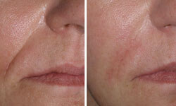 Close-up picture of a female face showing the results of a wrinkle fillers procedure.