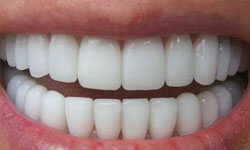 Picture of before and after upper and lower teeth showing the results of a zirconium crowns procedure.