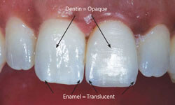 Picture of 5 teeth including the two front teeth with Zirconium veneers
