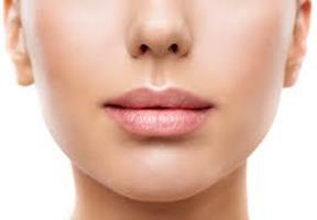 Close-up picture of woman's face showing the lip augmentation procedure she had in Costa Rica.