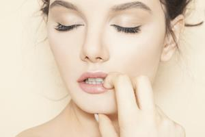 Close-up picture of woman's face showing the lip reduction procedure she had in Costa Rica.
