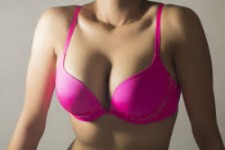 Close-up photo of a woman in a bright pink bra showing a breast implants removal procedure she had in Costa Rica.