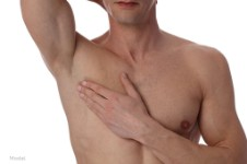 Picture of a male chest after having a male breast reduction procedure he had in Costa Rica.