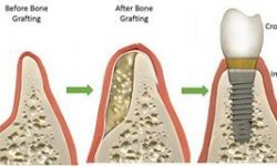 Illustration of a dental bone graft procedure.