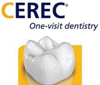 Illustration of a cerec crown, advertised as one-visit dentistry