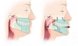 Illustration of a corrective jaw surgery procedure.
