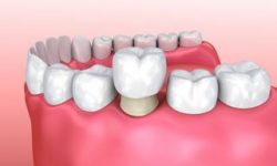 Illustration of a dental crown procedure.