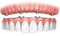 Illustration of an all-on-4 dental implant procedure