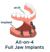 Illustration of an all-on-4 dental implant procedure in Costa Rica