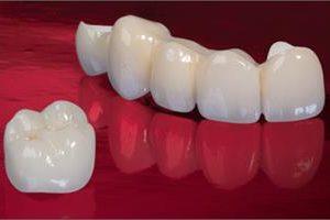 Illustration of a pure porcelain dental crown procedure.