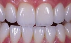 Picture of a smiling woman displaying the upper and lower teeth with the EMAX Zirconium crowns she had in Costa Rica.