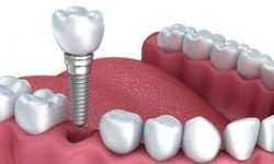 Illustration of a dental implant procedure.