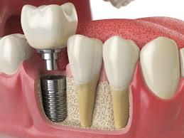 Illustration of a dental implant procedure.