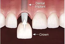Illustration of a dental implant crown procedure.