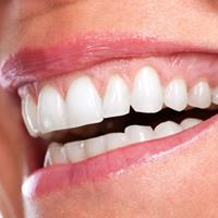 Picture of a smiling woman displaying the dental whitening procedure she had in Costa Rica.