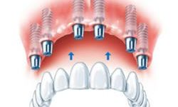 Illustration of an all-on-6 dental implant procedure